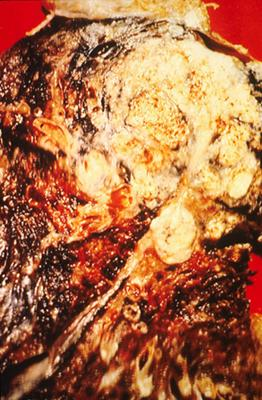Close up of cancerous lung